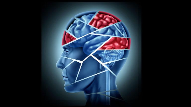 El ictus causa daños cerebrales